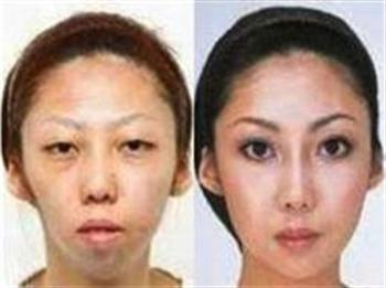 feng-wife-before-after