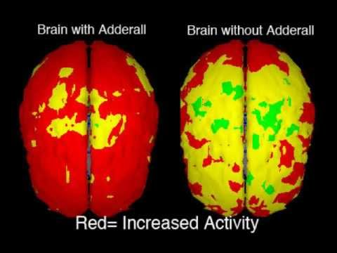 brain with and without adderall